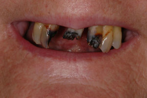 Loose Full and Partial Denture Stabilization with Small ...